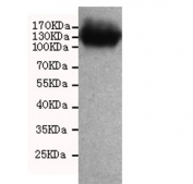 Western blot testing of human CaCo2 cell lysate with CD133 antibody at 1:1000. Predicted molecular weight: ~97 kDa (unmodified), ~130 kDa (glycosylated).