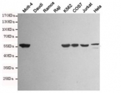 Western blot testing of Vimentin-positive cell lines (Molt-4, K562, COS7, Jurkat, HeLa) and Vimentin-negative cell lines (Daudi, Ramos, Raji) using Vimentin antibody at 1:1000. Predicted molecular weight ~58 kDa.