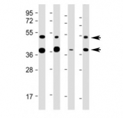 Western blot testing of FDPS antibody at 1:2000: Lane 1) human HeLa, 2) (h) HepG2, 3) (h) U-251 MG and 4) mouse liver lysate. Predicted molecular weight ~48 kDa (isoform 1) and ~40 kDa (isoform 2).