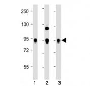 Western blot testing of Wee1 antibody at 1:2000: Lane 1) human HeLa, 2) Jurkat and 3) K562 cell lysate. Predicted molecular weight ~72 kDa.