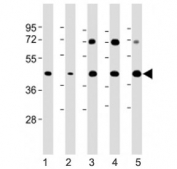 Western blot testing of Glycogenin antibody at 1:2000: Lane 1) human HeLa, 2) human HepG2, 3) mouse heart, 4) mouse skeletal muscle and 5) rat heart lysate. Predicted molecular weight ~39 kDa.