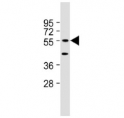 Western blot testing of mouse NIH3T3 cell lysate with DNAJC3 antibody at 1:2000. Predicted molecular weight ~58 kDa.