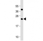 Western blot testing of human testis tissue lysate with FAM3A antibody at 1:2000. Predicted molecular weight ~25 kDa.
