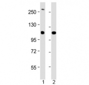 Western blot testing of 1) human SH-SY5Y and 2) mouse Neuro-2a cell lysate with NF-H antibody at 1:2000. Predicted molecular weight ~112 kDa, often visualized at ~200 kDa.