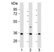 Western blot testing of human 1) U-87 MG, 2) U-2 OS and 3) MDA-MB-231 cell lysate with OR2AE1 antibody at 1:1000. Predicted molecular weight ~37 kDa.