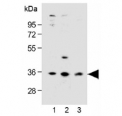 Western blot testing of human 1) LNCaP, 2) PC-3 and 3) HEK293 cell lysate with OR6C3 antibody at 1:1000 dilution. Predicted molecular weight ~35 kDa.