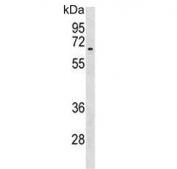 Western blot testing of human T-47D cell lysate with ACVR1 antibody at 1:1000. Predicted molecular weight ~57 kDa.