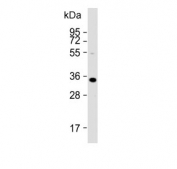 Western blot testing of human Hela lysate with ARV1 antibody. Predicted molecular weight ~31 kDa.