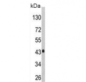 Western blot testing of human HepG2 cell lysate with AGXT antibody. Predicted molecular weight ~43 kDa.