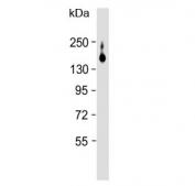 Western blot testing of rat liver lysate with ATP7B antibody. Expected molecular weight: 140-157 kDa.