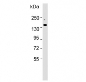 Western blot testing of mouse liver lysate with ATP7B antibody. Expected molecular weight: 140-157 kDa.
