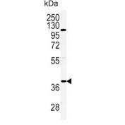Western blot testing of human HeLa cell lysate with Adiponectin Receptor 2 antibody. Predicted molecular weight ~44 kDa.