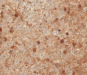 IHC testing of FFPE human liver tissue with Albumin antibody. HIER: steam section in pH9 EDTA for 20 min and allow to cool prior to staining.