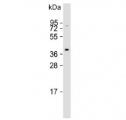 Western blot testing of mouse NIH 3T3 cell lysate with Angiotensin II Type 1 Receptor antibody. Observed molecular weight: 41-50 kDa depending on glycosylation level.