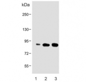 Western blot testing of human 1) Caki-1, 2) HeLa and 3) HepG2 cell lysate with ATG7 antibody. Predicted molecular weight: 70-80 kDa.