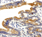 IHC testing of FFPE human small intestine tissue with ADRA1D antibody. HIER: steam section in pH6 citrate buffer for 20 min and allow to cool prior to staining.