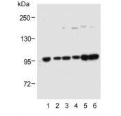 Western blot testing of human 1) A431, 2) HEK293, 3) SK-BR-3, 4) RPMI-8226, 5) MOLT4 and 6) PC-3 cell lysate with ADAMTS17 antibody. Predicted molecular weight ~121 kDa.
