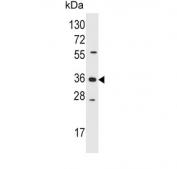 Western blot testing of human Jurkat cell lysate with AKR1B1 antibody. Predicted molecular weight ~36 kDa.