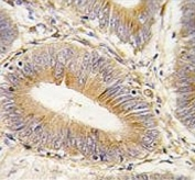 IHC testing of FFPE human colon carcinoma tissue with AKR1B1 antibody. HIER: steam section in pH6 citrate buffer for 20 min and allow to cool prior to staining.