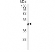 Western blot testing of human T-47D cell lysate with ADH1C antibody. Predicted molecular weight ~40 kDa.