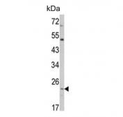 Western blot testing of human HEK293 cell lysate with ATP5O antibody. Predicted molecular weight ~23 kDa.