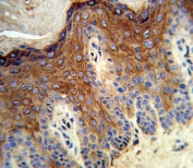 IHC testing of FFPE human skin tissue with ALOX12 antibody. HIER: steam section in pH6 citrate buffer for 20 min and allow to cool prior to staining.