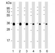 Western blot testing of 1) human HeLa, 2) human Jurkat, 3) human A549, 4) rat C6, 5) mouse NIH 3T3 and 6) mouse brain lysate with GAPDH antibody. Predicted molecular weight ~36 kDa.