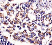 IHC testing of FFPE human lung adenocarcinoma tissue with 60 kDa Heat Shock Protein antibody. HIER: steam section in pH6 citrate buffer for 20 min and allow to cool prior to staining.