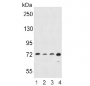 Western blot testing of human 1) HeLa, 2) A549, 3) K562 and 4) MDA-MB-453 cell lysate with ALOX15 antibody. Predicted molecular weight ~75 kDa.