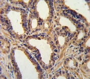 IHC testing of FFPE human prostate carcinoma tissue with NPPA antibody. HIER: steam section in pH6 citrate buffer for 20 min and allow to cool prior to staining.