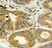 IHC testing of FFPE human prostate carcinoma tissue with ARL8A antibody. HIER: steam section in pH6 citrate buffer for 20 min and allow to cool prior to staining.