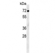 Western blot testing of mouse stomach lysate with ATF7IP2 antibody. Predicted molecular weight ~76 kDa.