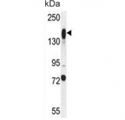 Western blot testing of mouse liver tissue lysate with Additional sex combs-like protein 1 antibody. Predicted molecular weight ~165 kDa.