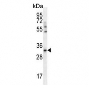 Western blot testing of human A549 cell lysate with ADP,ATP carrier protein 3 antibody. Predicted molecular weight ~32 kDa.