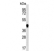 Western blot testing of mouse NIH 3T3 cell lysate with ADE2 antibody. Predicted molecular weight ~47 kDa.