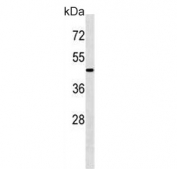 Western blot testing of mouse kidney tissue lysate with ATG4A antibody. Predicted molecular weight ~45 kDa, commonly observed between 45-60 kDa.