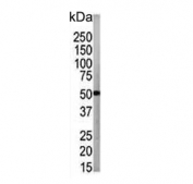 Western blot testing of human CCRF-CEM cell lysate with ATG4B antibody. Expected molecular weight: 37-52 kDa (multiple isoforms).