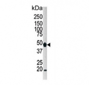Western blot testing of human HeLa cell lysate with ATG4B antibody. Expected molecular weight: 37-52 kDa (multiple isoforms).