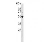 Western blot testing of human Jurkat cell lysate with ATG4C antibody. Predicted molecular weight ~52 kDa.