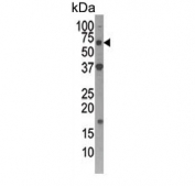 Western blot testing of human Y79 cell lysate with Autophagin 4D antibody. Expected molecular weight: 53-56 kDa.