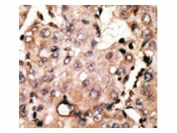 IHC testing of FFPE human cancer tissue with Autophagin 4D antibody. HIER: steam section in pH6 citrate buffer for 20 min and allow to cool prior to staining.