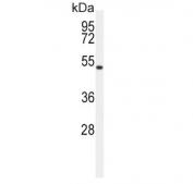 Western blot testing of human HEK293 cell lysate with ASMT antibody. Predicted molecular weight ~38 kDa.