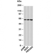 HSP60 antibody western blot with human samples