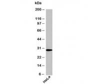 Western blot testing of human samples using NQO1 antibody at 1ug/ml. Predicted molecular weight ~30kDa.