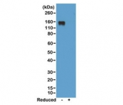 Western blot of nonreduced(-) and reduced(+) mouse IgG2a, using 0.5ug/ml of recombinant Mouse IgG2a antibody. This mAb reacts to nonreduced IgG2a (~150 kDa).