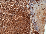 IHC staining of FFPE human tonsil with recombinant Beta Actin antibody at 1:1000 (clone RM112). HIER: boil tissue sections in pH 6 citrate buffer or pH 9 10mM Tris with 1mM EDTA for 20 min and allow to cool before testing.