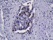 IHC testing of FFPE human breast cancer tissue with recombinant Ki67 antibody.