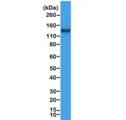 Western blot testing of human Jurkat cell lysate with recombinant CD31 antibody at 1:1000. Expected molecular weight: 83-130 kDa depending on level of glycosylation.