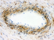 IHC-F testing of frozen human placenta with Actin antibody.