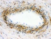 IHC-F testing of frozen human placenta with Actin antibody.